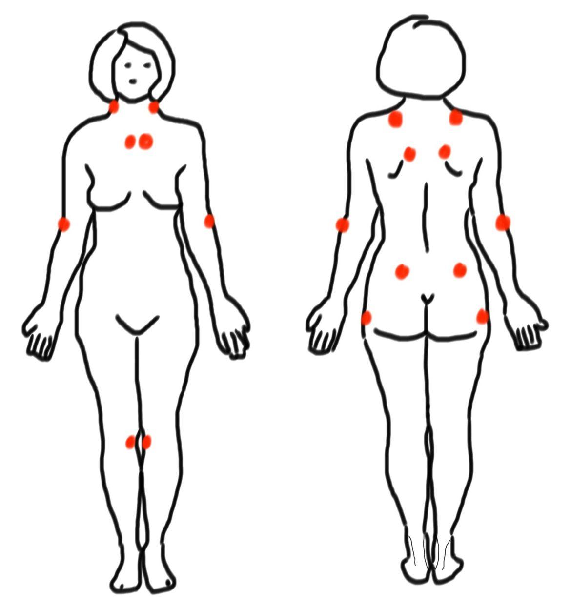 Fibromyalgie & ostéopathie expliqués au patient